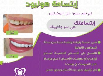 hollywood smile Design(1)