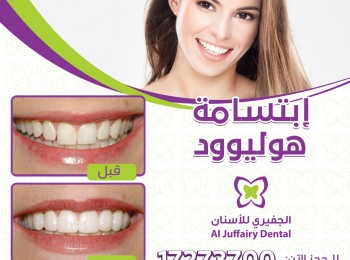 hollywood smile Design(9) int 2.0